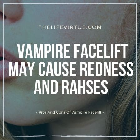 advantages and disadvantages of vampire facelift